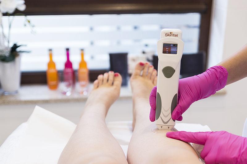 depilacja laserowa, vectus, clinica cosmetologica, jak wygląda zabieg, smartlife, uroda, beauty blog